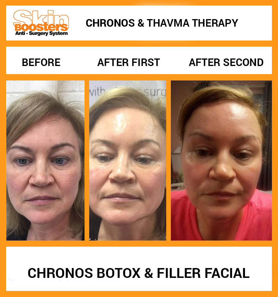 Skin Boosters - Chronos and Thavma Therapy