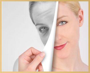 What is Skin Peeling?