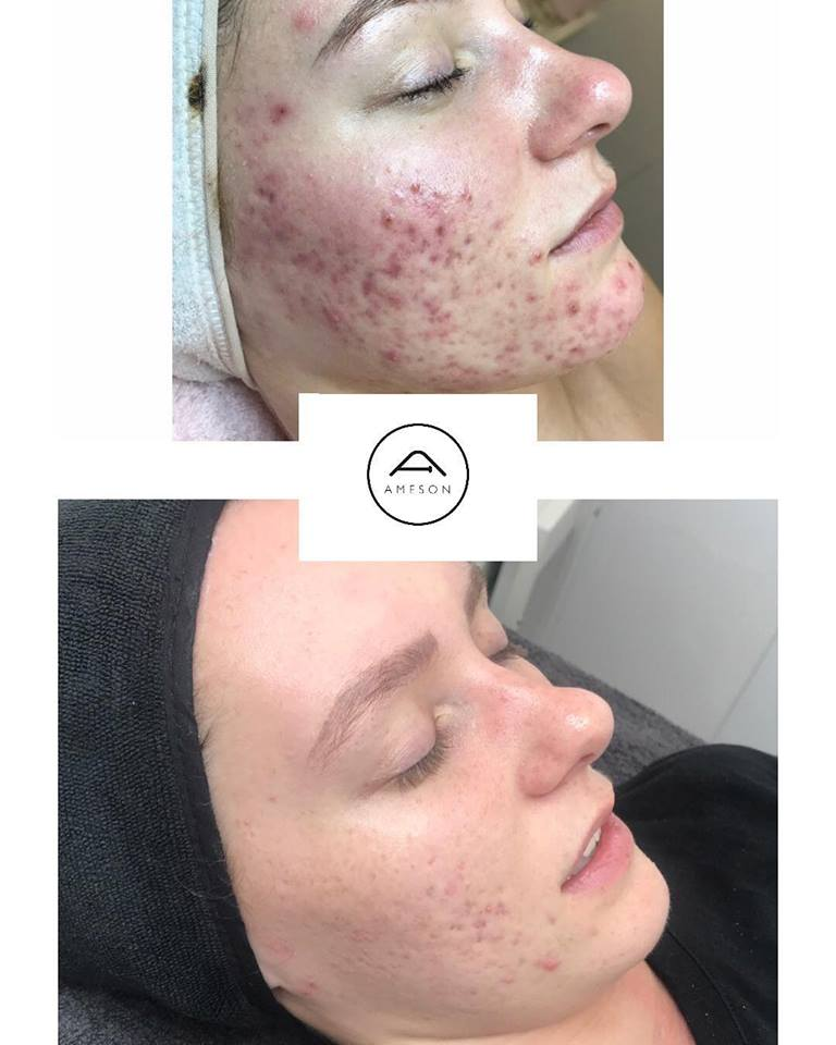 Skin Needling with Ameson Mesotherapy